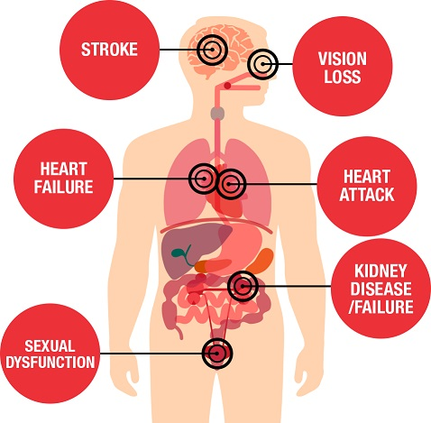 risk factors for hypertension